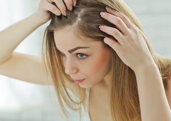 Sizin saç dökülmeniz hangi tip